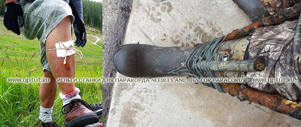 Выживание - повязки и шины из паракорда